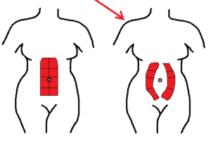 illustration of abdominal separation due to diastasis recti